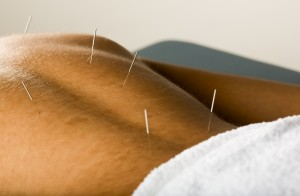 Acupuncture_for_Low_Back_Pain