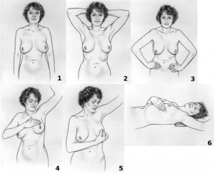 Breast self examination procedure