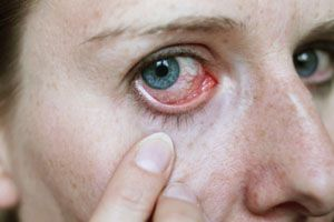 Conjunctivitis is the inflammation of the clear tissue that protects the eye