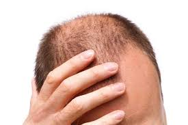 Oiling your hair helps in hair growth and prevents early balding