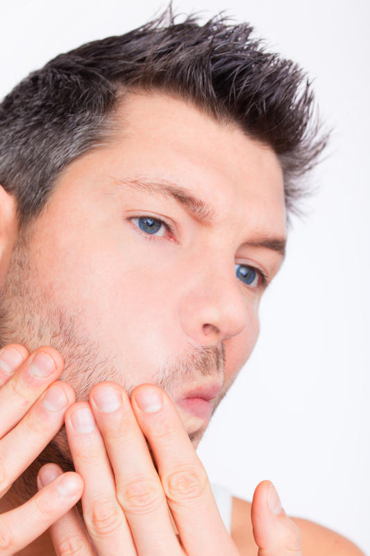 Man trying to pop under-the-skin blind pimple on his right cheek