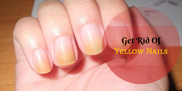 Get Rid Of Yellow Nails With These Effective Tips The